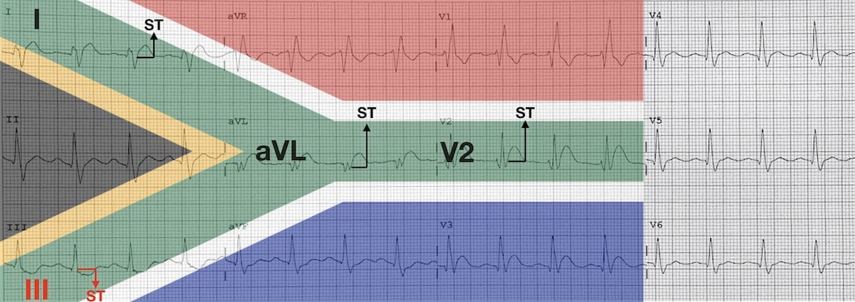 ECG High lateral STEMI 3 South African Flag sign