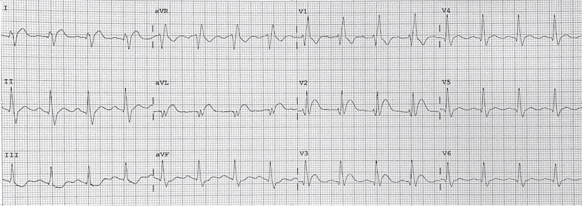 ECG High lateral STEMI 3