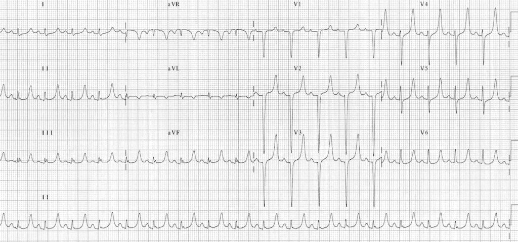 ECG Hyperkalaemia peaked T waves serum potassium 7.0