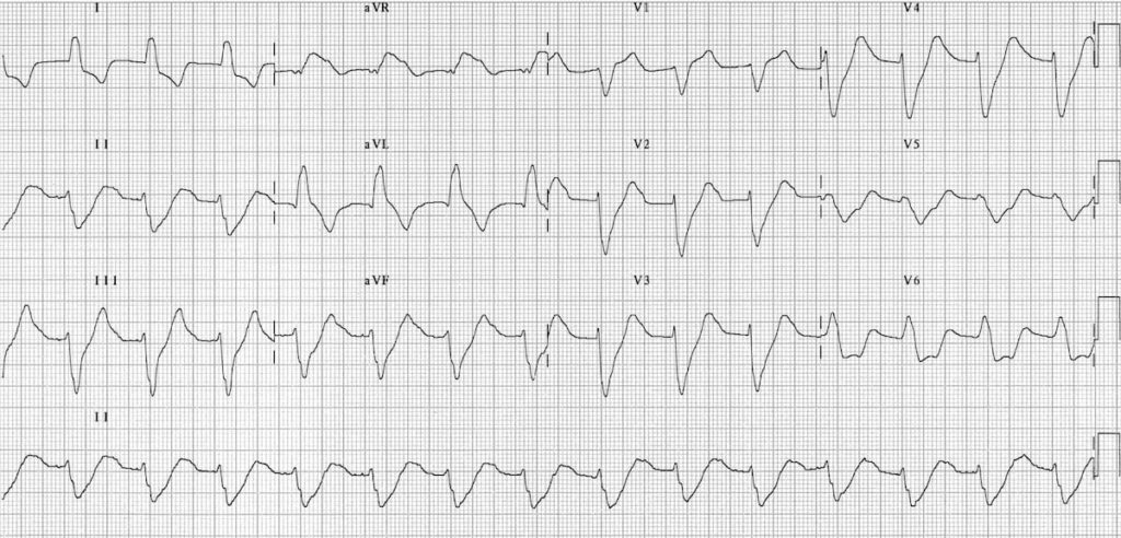 ECG Hyperkalemia broad QRS