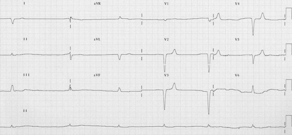 ECG Hyperkalemia junctional bradycardia potassium 8