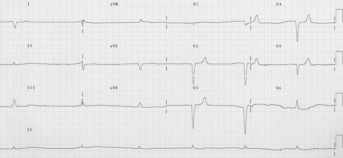 Hyperkalaemia ECG changes • LITFL • ECG Library Diagnosis