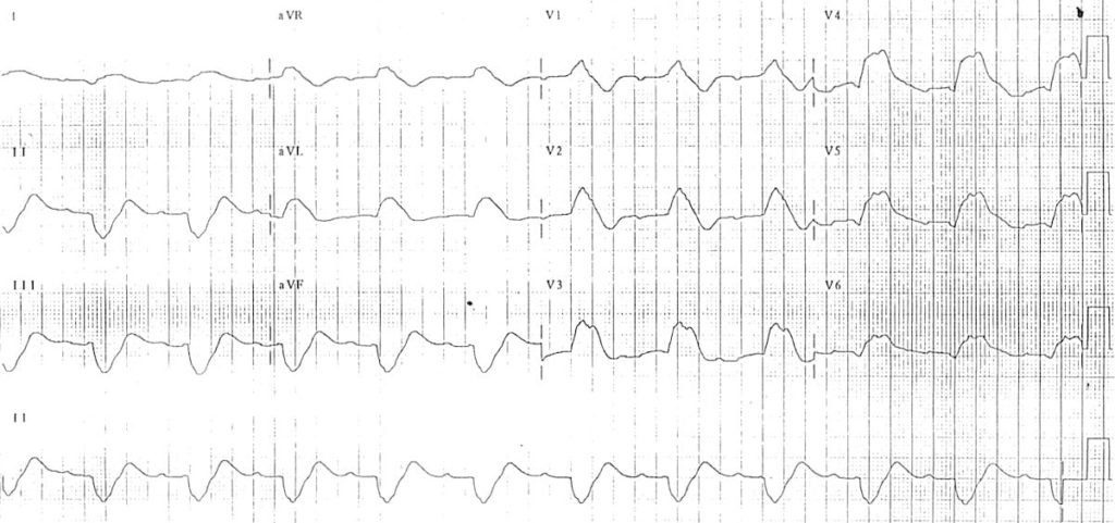 ECG Hyperkalemia prolonged PR bizarre QRS complexes
