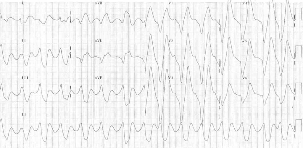ECG Hyperkalemia rhabdomyolysis