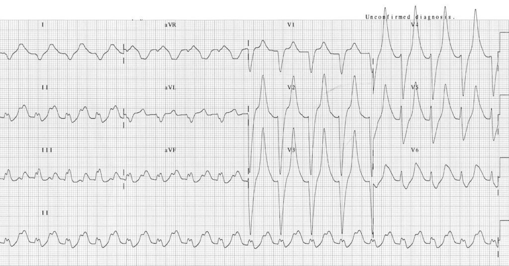 ECG Hyperkalemia serum potassium 9.3