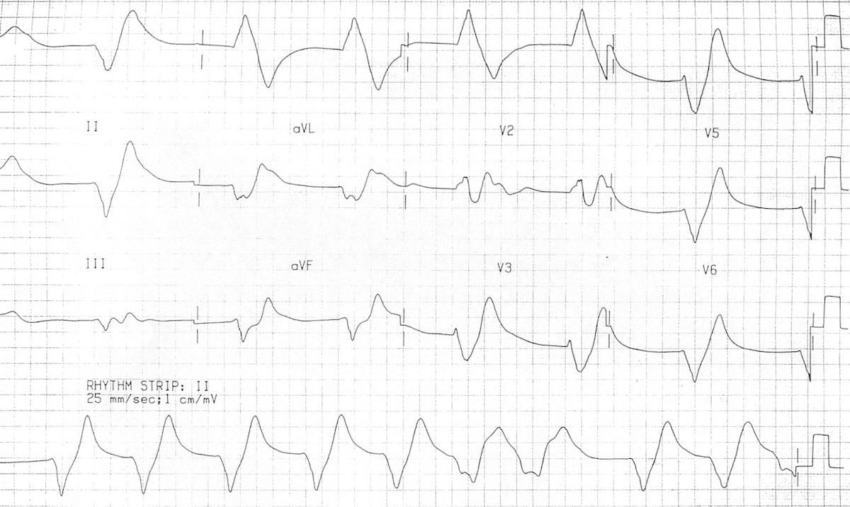 hyperkalaemia ecg changes  u2022 litfl  u2022 ecg library diagnosis