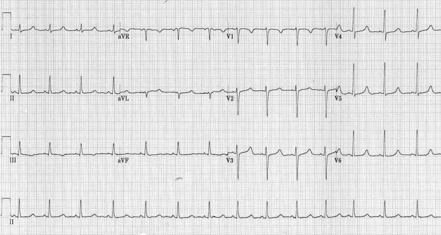 ECG Hypocalcaemia QTc 500