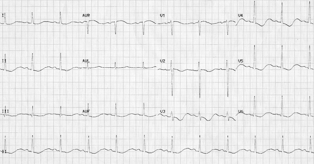 ECG Hypokalaemia ST changes