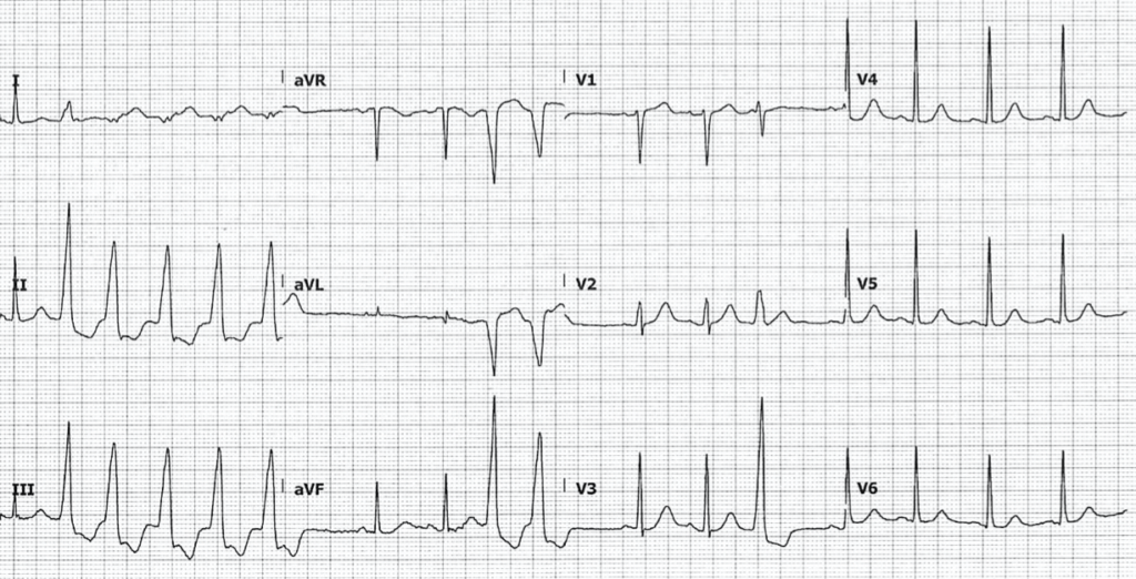 ECG Hypomagnesemia nonsustained ventricular tachycardia 1