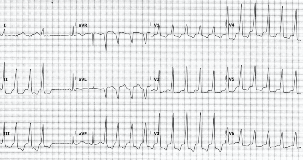ECG Hypomagnesemia nonsustained ventricular tachycardia 2