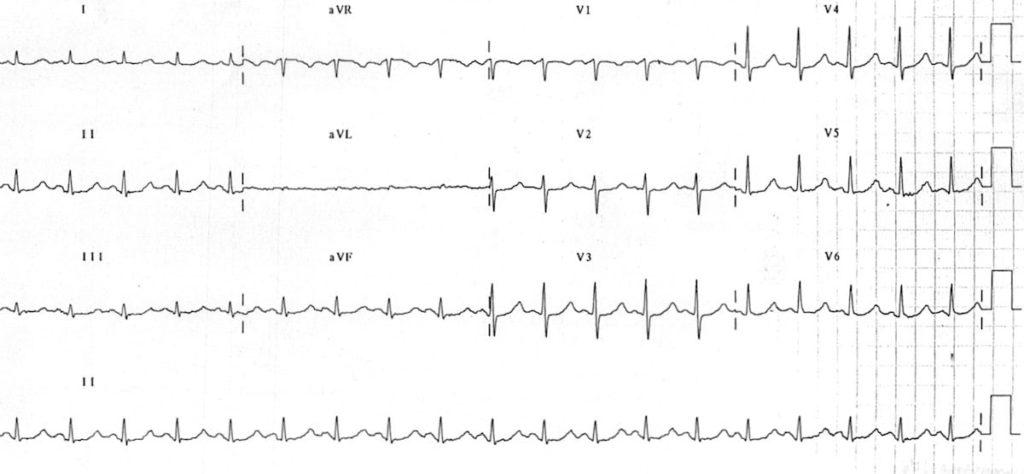 ECG Hypomagnesemia prolonged QT