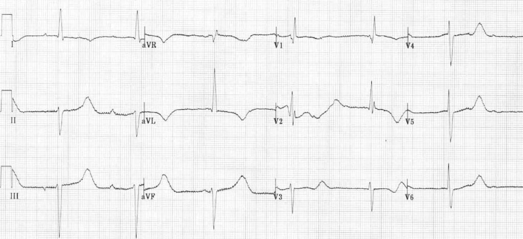 ECG Hypothermia long QT shivering artifact