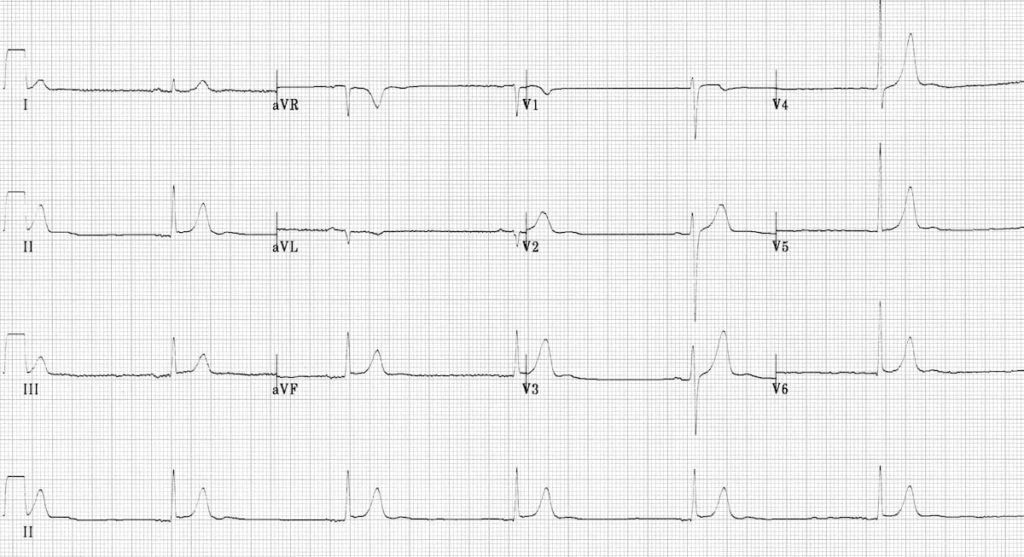 ECG Hypothermia sinus bradycardia 1