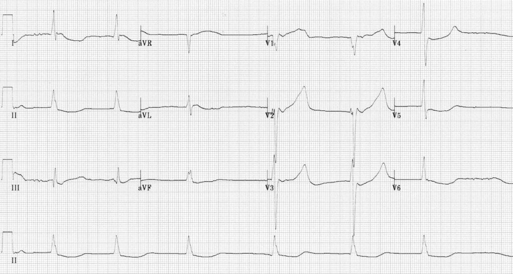 ECG Hypothermia slow atrial fibrillation AF