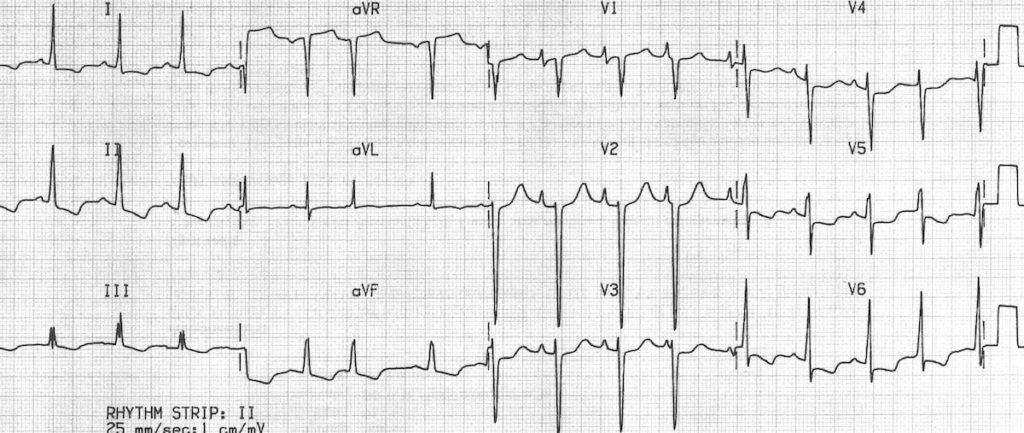 ECG Idiopathic dilated cardiomyopathy Biatrial hypertrophy