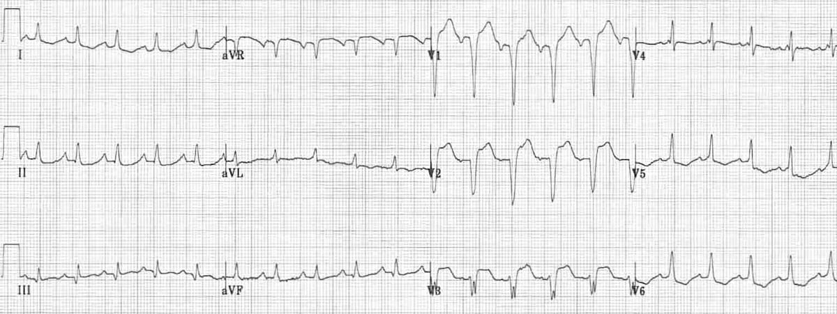 ECG Incomplete LBBB 1