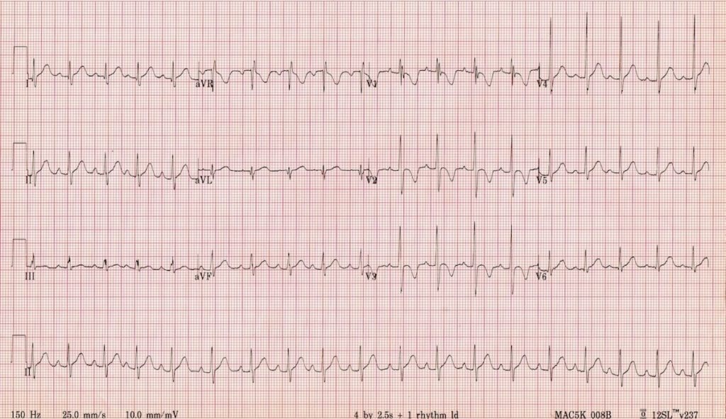 ECG Incomplete RBBB Normal Pediatric 2 year old