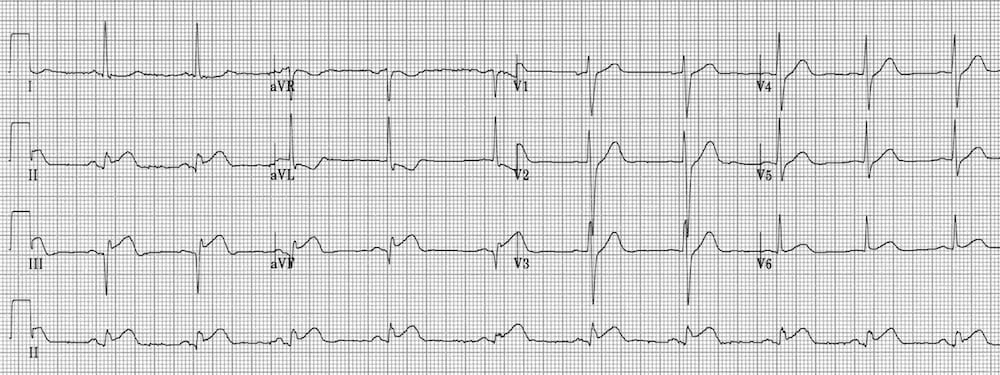 ECG Inferior AMI Reciprocal ST depression