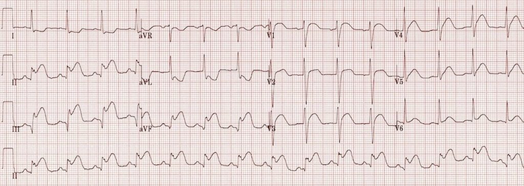 ECG Inferior AMI STEMI 2