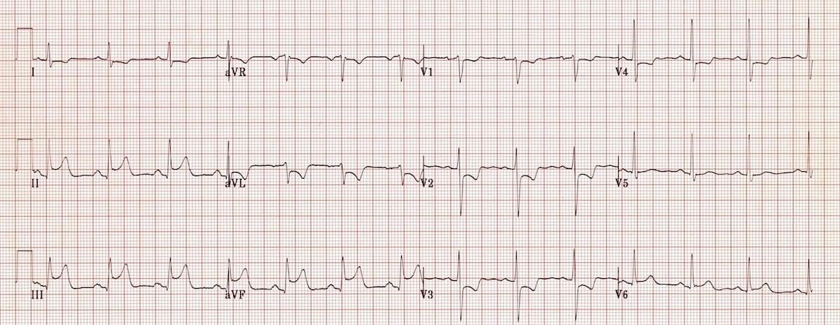 ECG Inferior AMI STEMI 3