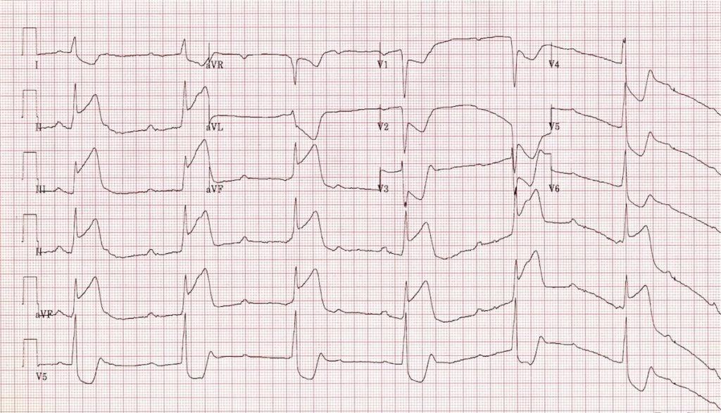 ECG Inferior AMI STEMI CHB Complete heart block