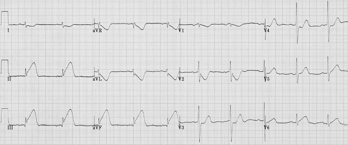 ECG Inferior AMI STEMI Hyperacute