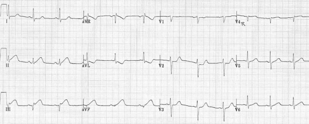 ECG Inferior STEMI Hyperacute 1