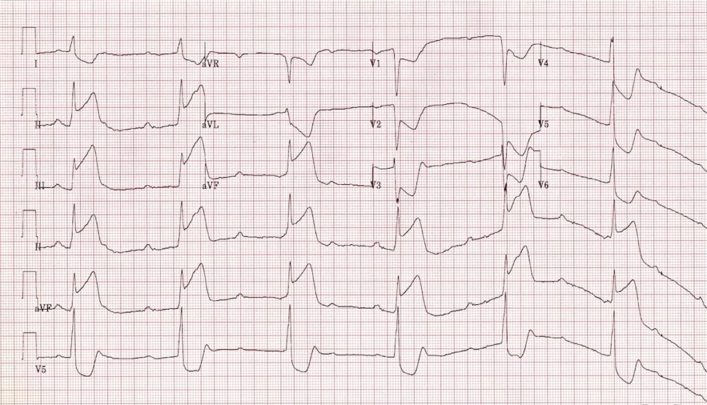 ECG Inferior STEMI with 3rd degree AV Block CHB