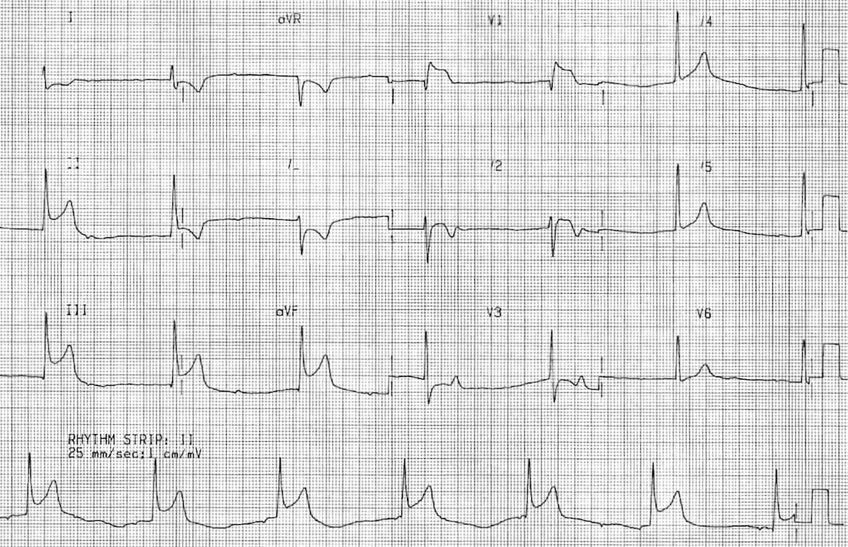 ECG Inferior STEMI with sinus node dysfunction