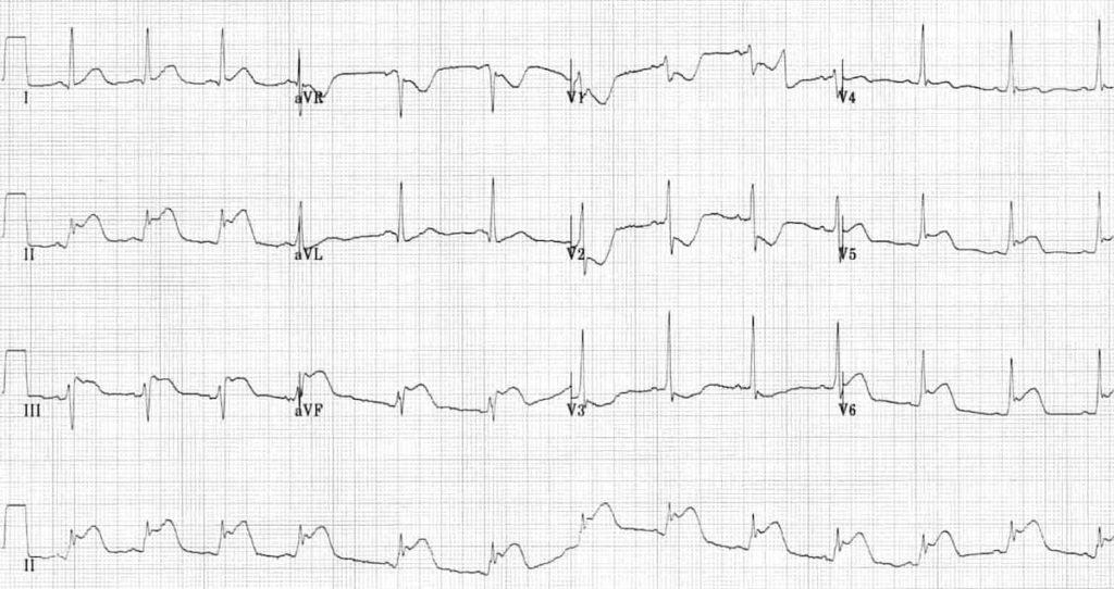 ECG Inferolateral STEMI proximal circumflex artery occlusion