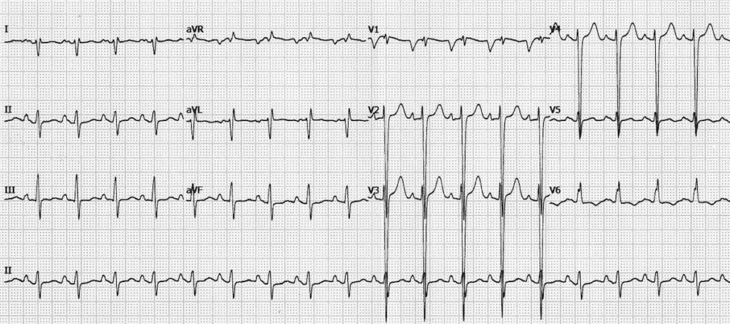 ECG Ischaemic dilated cardiomyopathy 1