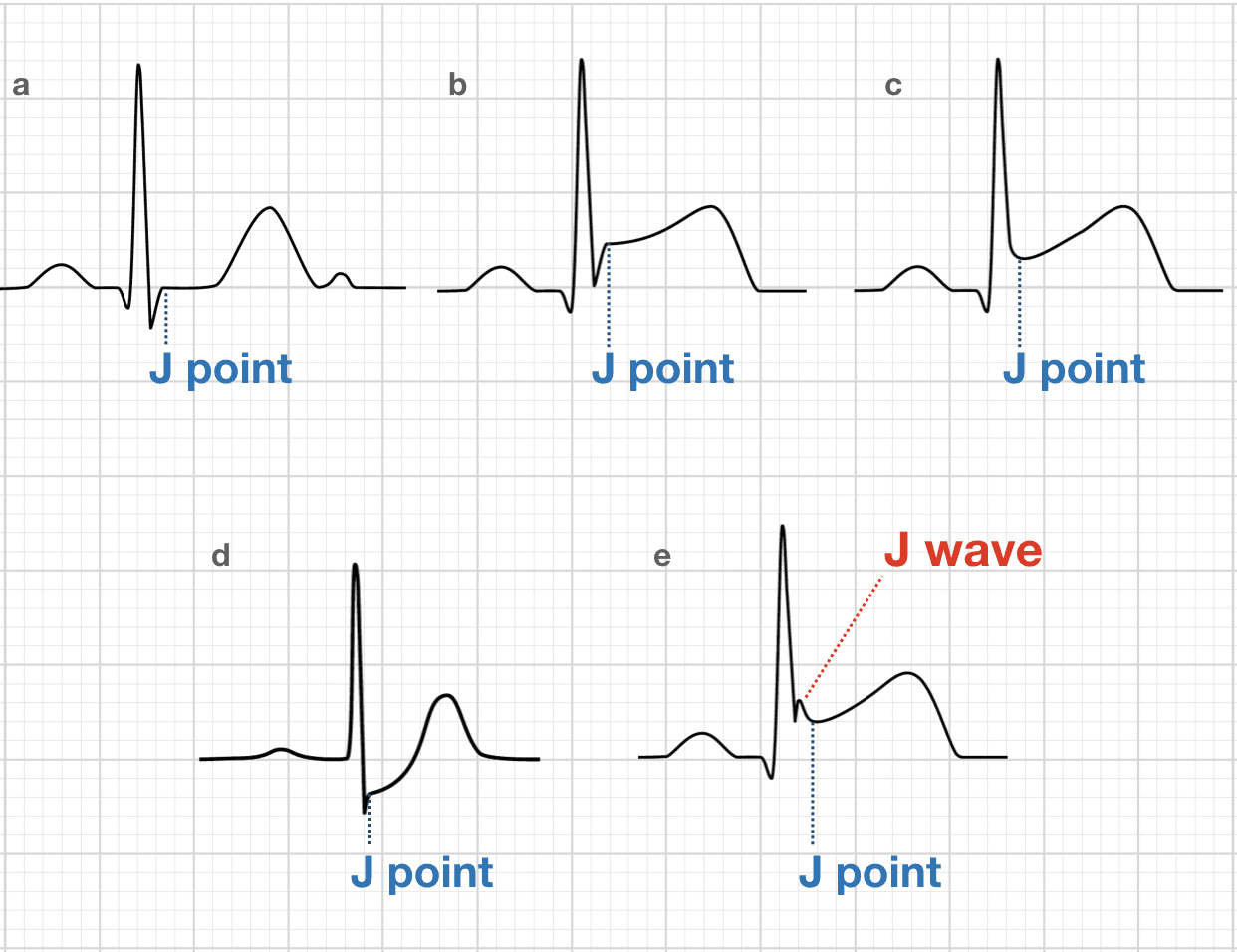 Osborn Wave (J Wave) • LITFL Medical Blog • ECG Library Basics