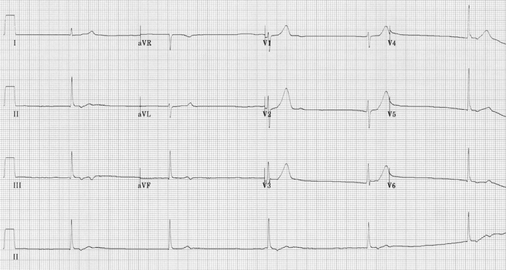 ECG Junctional bradycardia