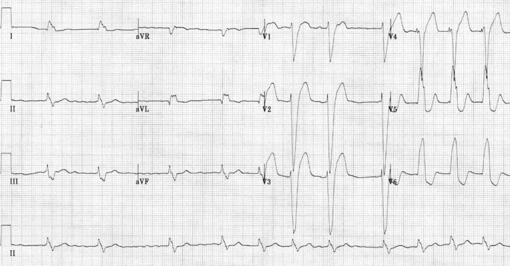Sinus Arrhythmia - Life in the FastLane ECG Library |Ekg Examples