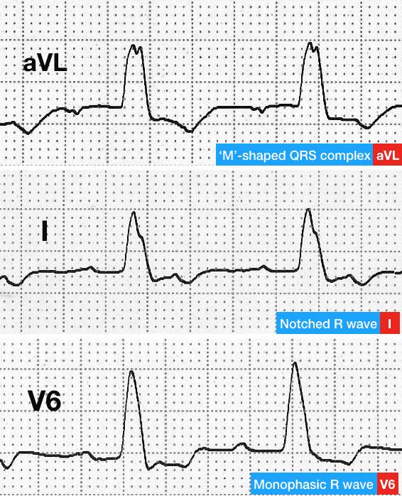 ECG LBBB R wave changes in I aVL V6