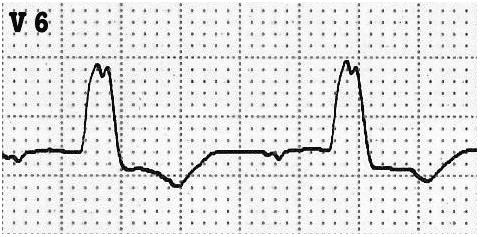 ECG LBBB V6 absent Q waves
