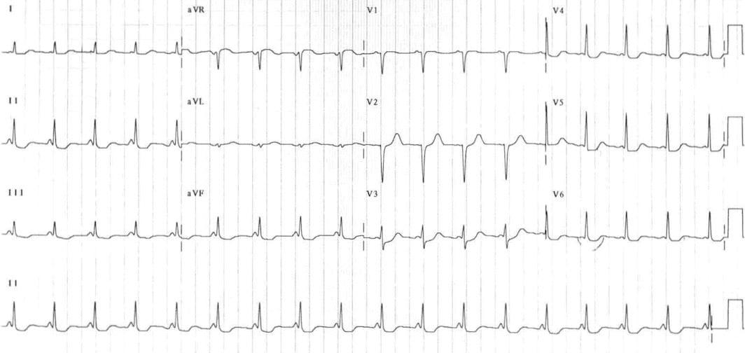 ECG LGL Lown-Ganong-Levine syndrome