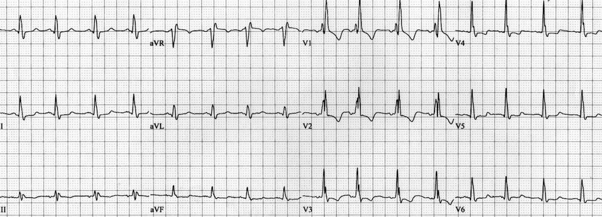 LMCA occlusion: ST Elevation in aVR • LITFL • ECG Library Diagnosis