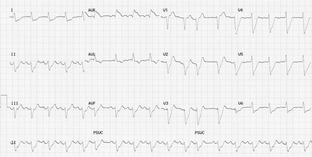 ECG LMCA Occlussion 1 Left main coronary artery (LMCA)