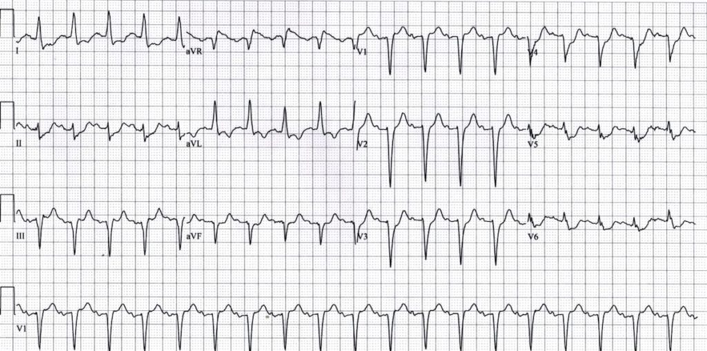 ECG LMCA Occlussion 2 Left main coronary artery (LMCA)