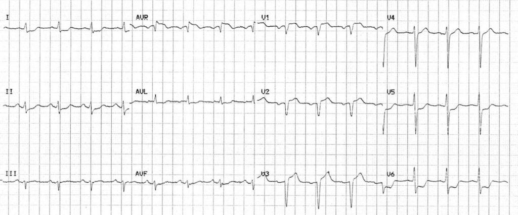 ECG LMCA proximal LAD 2