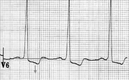 ECG LV Strain V6