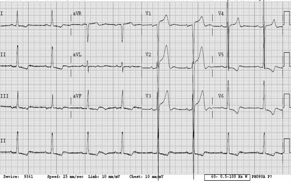 ECG LVH ST elevation not MI