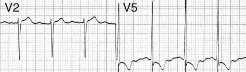 ECG LVH V2 and V5