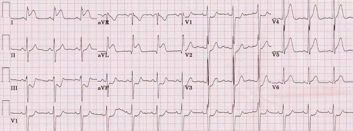Accelerated Idioventricular Rhythm (AIVR) or slow VT ECG ... |Ekg Examples