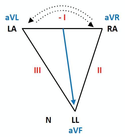 ECG Lead reversal LA-RA diagram