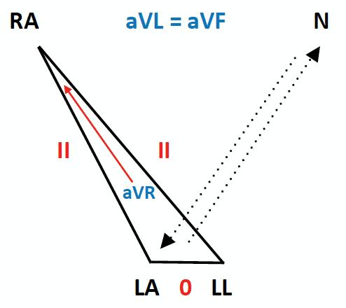 ECG Lead reversal LA:RL(N) reversal