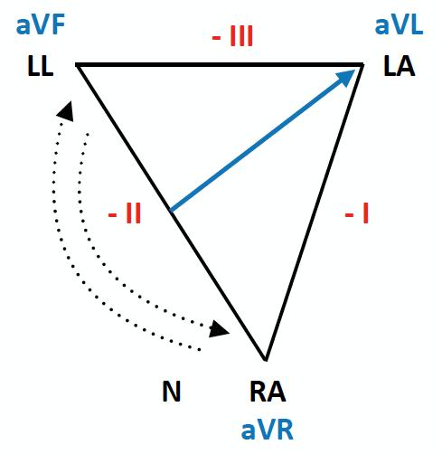 ECG Lead reversal RA-LL diagram