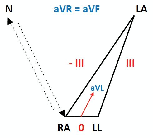 ECG Lead reversal RA-RL diagram