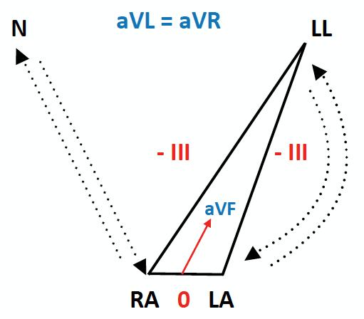 ECG Lead reversal bilateral arm leg reversal diagram